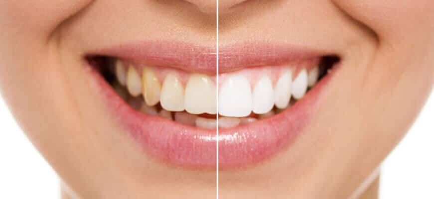 teeth whitening hobart